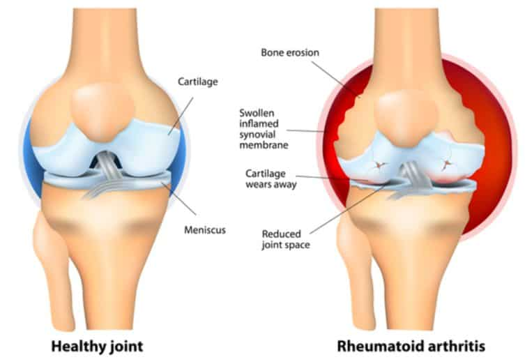 Picture showing healthy knee and knee with arthritis